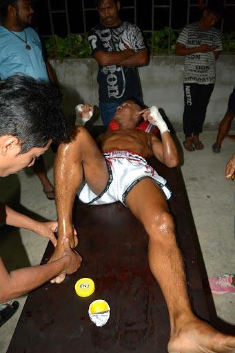 Тайские бальзам пример растирания после травмы
